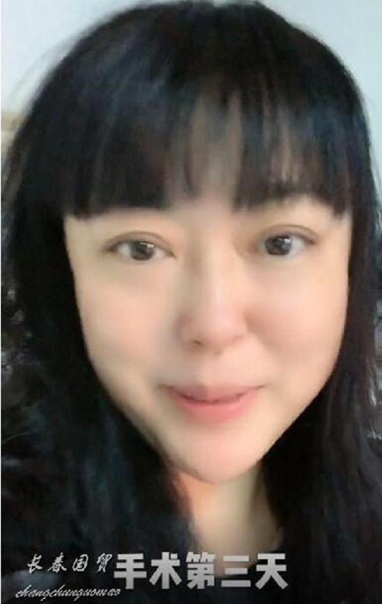 51岁李菁菁自爆患癌,术后近照面容消瘦难掩虚弱